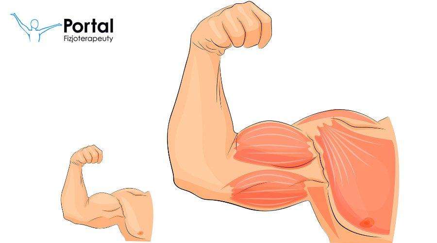 Hiperplazja mięśni