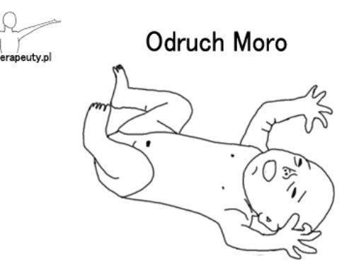 Odruch Moro