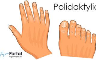 Polidaktylia