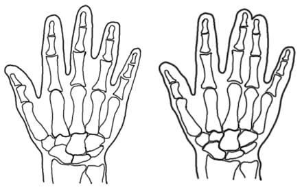Syndaktylia - ręce