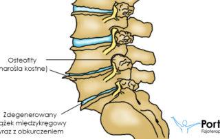 Zwyrodnienie kręgosłupa