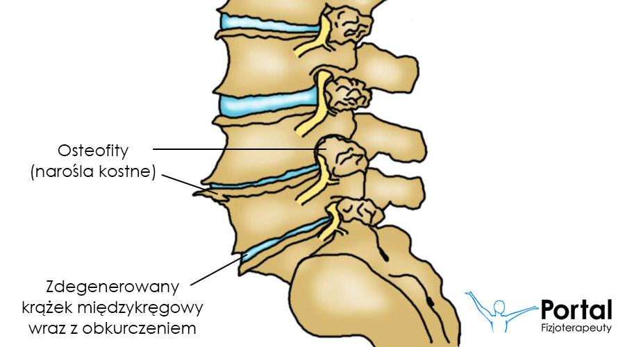 Zwyrodnienie kręgosłupa: przyczyny, leczenie | Lekarz od