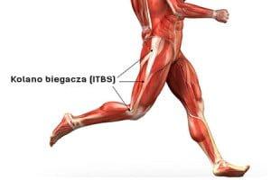 Kolano biegacza ITBS