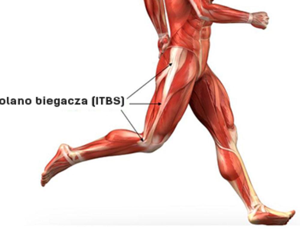 Kolano biegacza (zespół pasma biodrowo-piszczelowego)