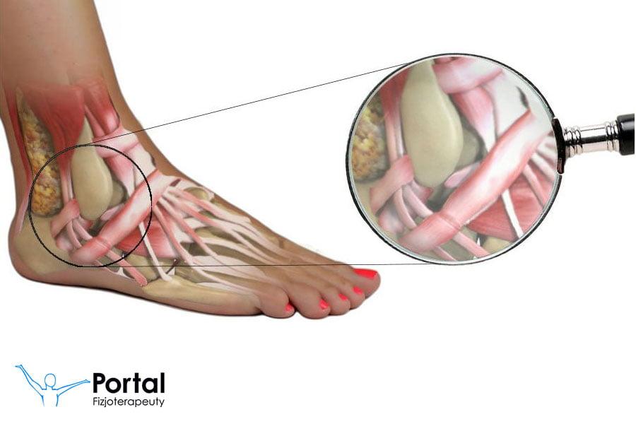 Staw skokowy - anatomia