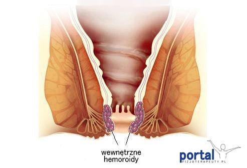 Hemoroidy wewnętrzne
