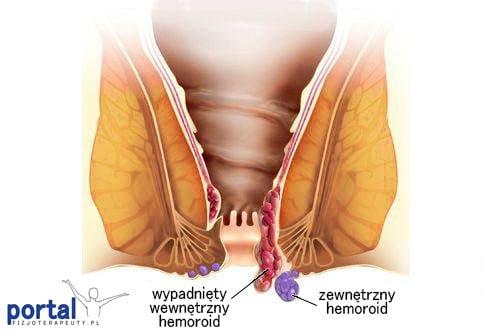 Hemoroidy zewnętrzne