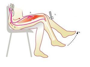 Odruch miotatyczny (odruch kolanowy)