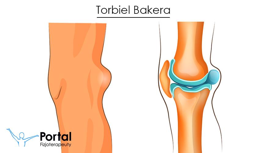 Torbiel Bakera