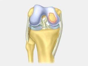 Usprawnianie po operacjach chrząstki stawu kolanowego ikona