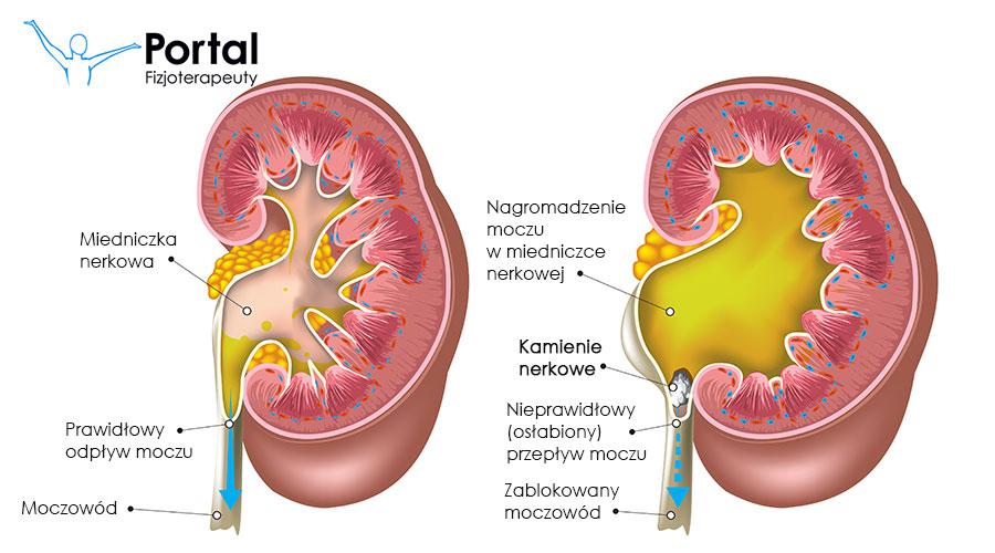 Kamica nerkowa fizjoterapia