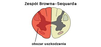 Zespół Browna-Sequarda