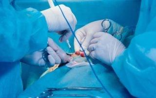 Zabiegi chirurgiczne w nowotworach gruczołu piersiowego