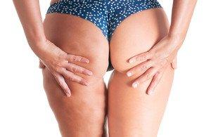 masaz prozniowy sposob na cellulit