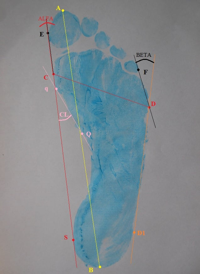 Plantokonturografia (stopa)