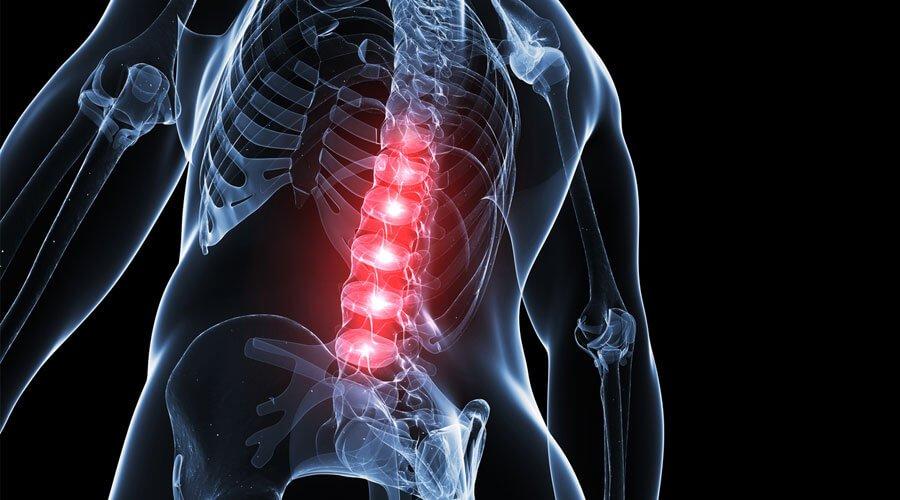 Zapalenie rdzenia kręgowego fizjoterapia
