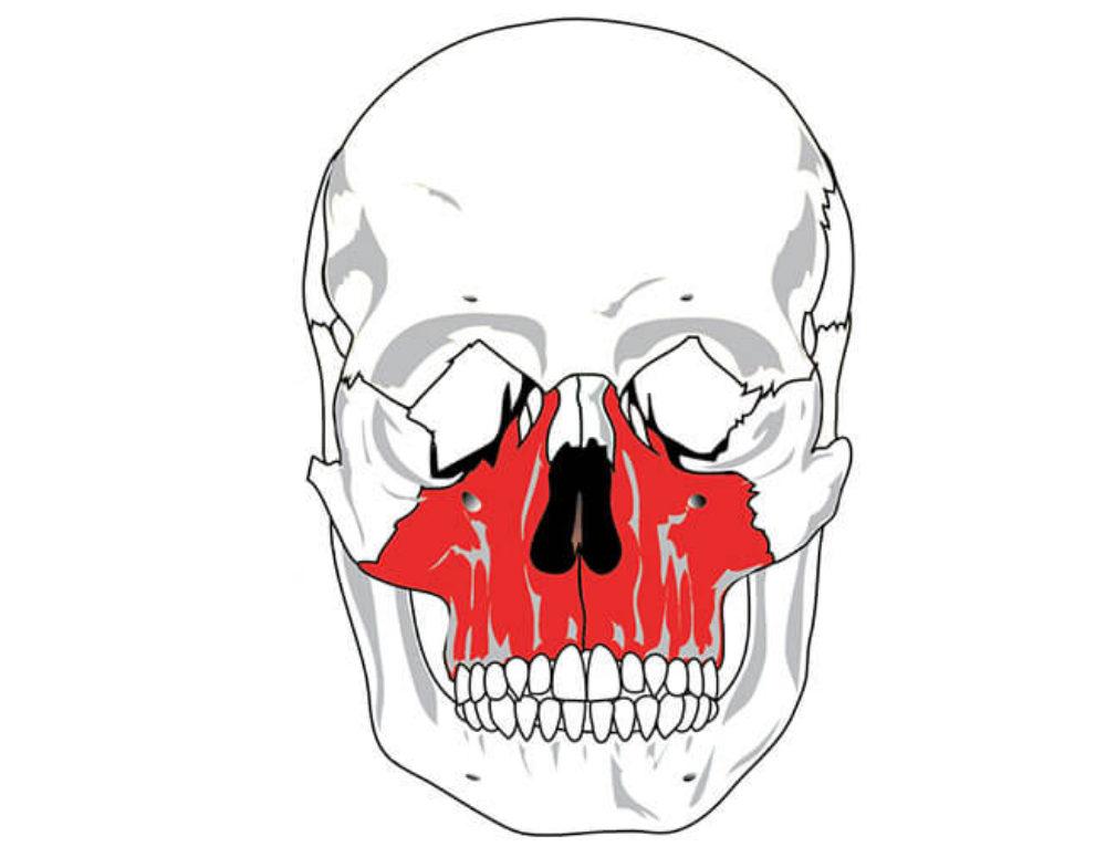 Szczęka (maxilla) – budowa
