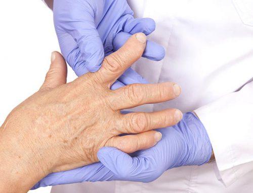 Reumatoidalne zapalenie stawów – fizjoterapia