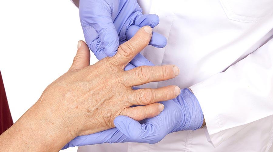 Reumatoidalne zapalenie stawów fizjoterapia