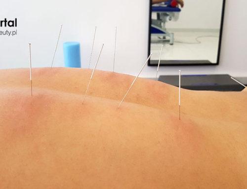 Suche igłowanie jako rodzaj akupunktury