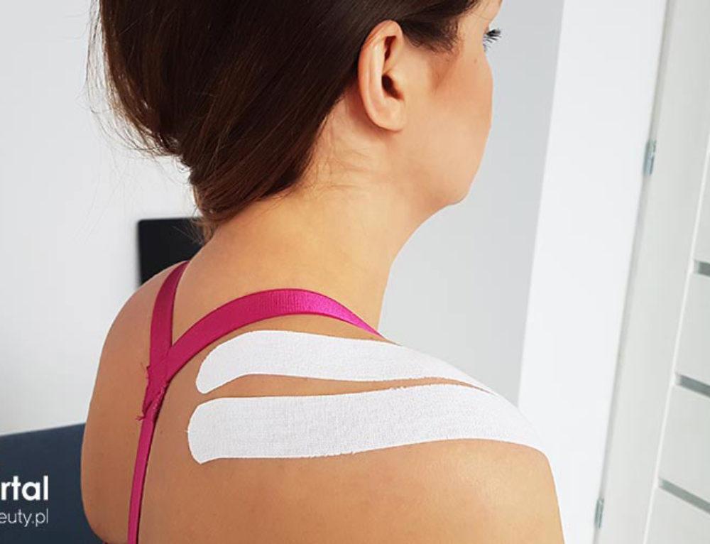 Taping mięśnia nadgrzebieniowego