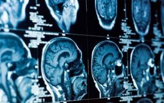 Testy neurologiczne w badaniu przedmiotowym