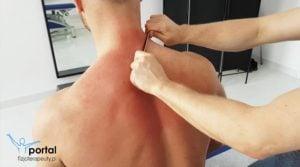 Uszkodzenie mięśni pleców jest stanem charakteryzującym się naciągnięciem, bądź zerwaniem mięśnia lub jego ścięgna. Oceniane jest w skali od I