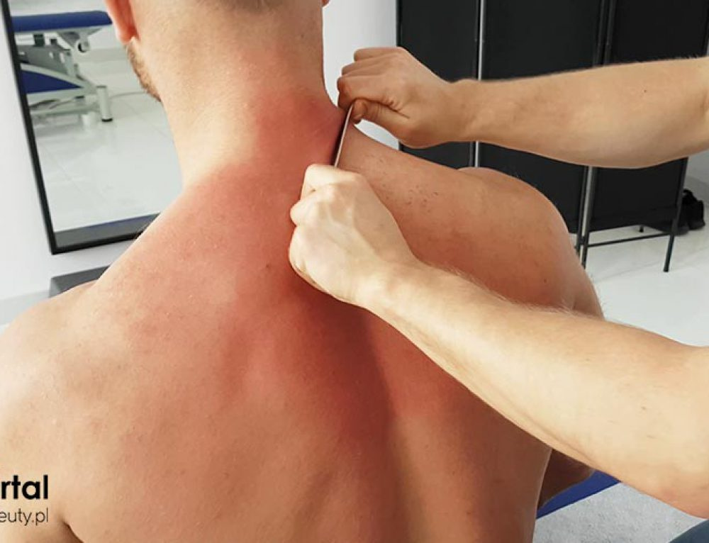 Uszkodzenie mięśni pleców – przyczyny, objawy, leczenie