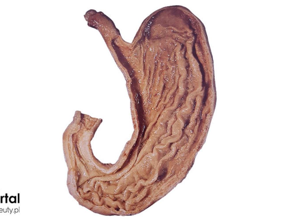 Żołądek – budowa i funkcje