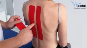Kinesiotaping na ból pleców