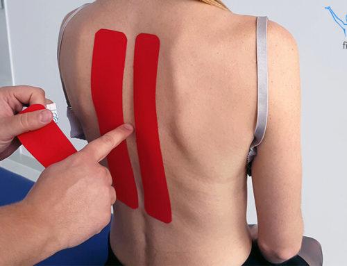 Kinesiotaping na ból pleców (odcinek piersiowy)