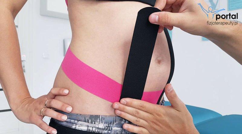 Kinesiotaping w ciąży