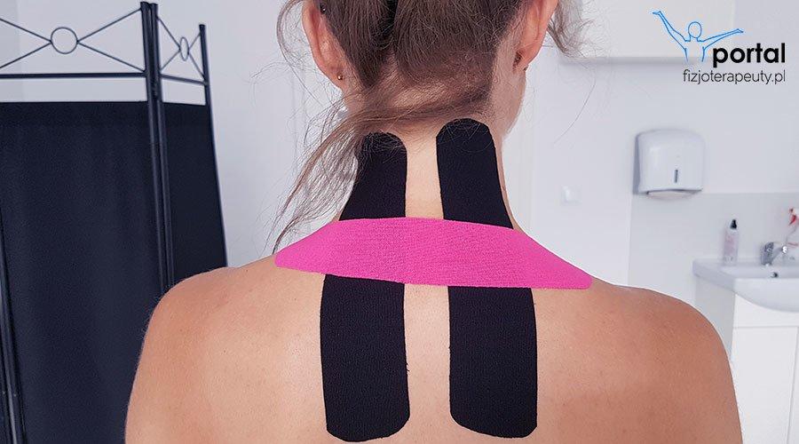 Kinesiotaping w ciąży - ból w okolicy szyi