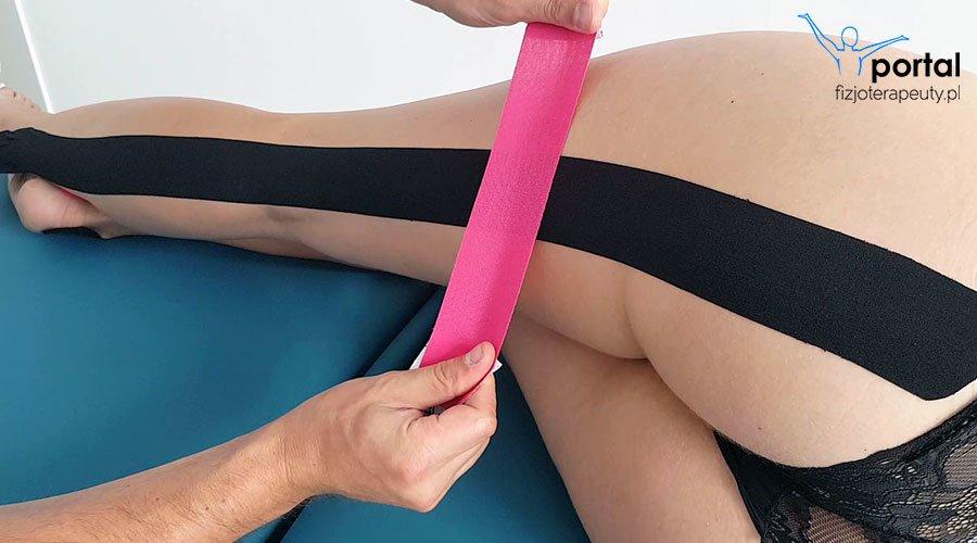 Kinesiotaping w ciąży - rwa kulszowa w ciąży