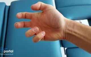 Spastyczność fizjoterapia