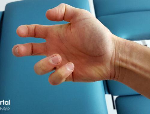 Spastyczność – fizjoterapia