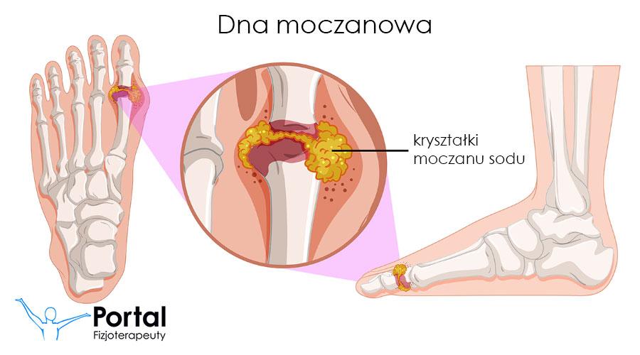 Dna moczanowa fizjoterapia