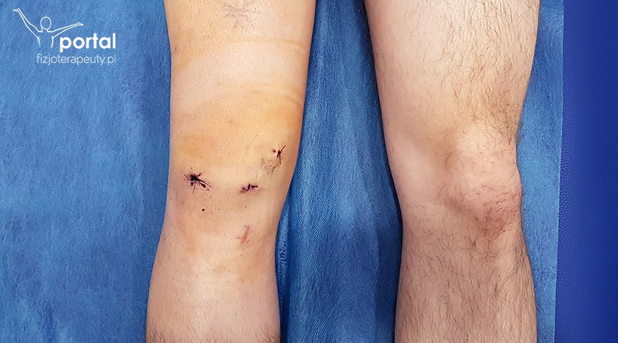 Uszkodzenie więzadła krzyżowego przedniego