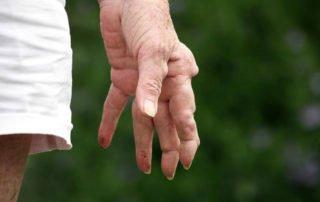 Reumatoidalne zapalenie stawów ręki