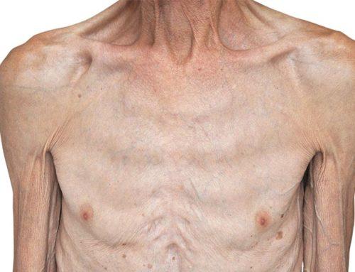 Sarkopenia – fizjoterapia