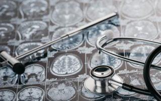 Wodogłowie fizjoterapia