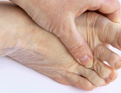 Łuszczycowe zapalenie stawów – fizjoterapia