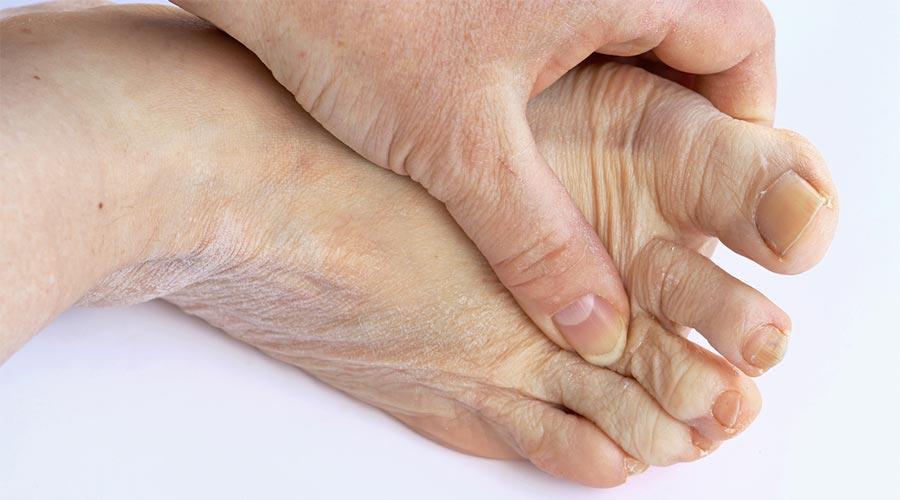 Łuszczycowe zapalenie stawów - fizjoterapia