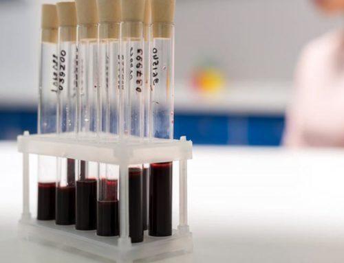 Hemofilia – rodzaje, objawy, leczenie
