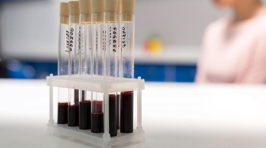 Hemofilia - rodzaje, objawy, leczenie