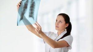 Wysiękowe zapalenie opłucnej fizjoterapia