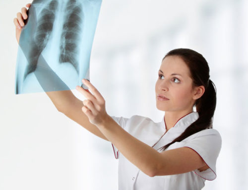 Wysiękowe zapalenie opłucnej – fizjoterapia