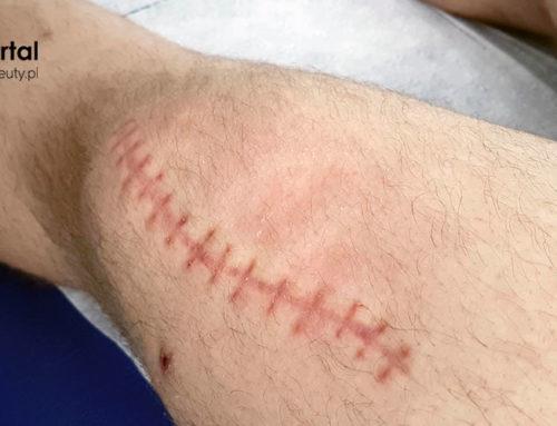 Uszkodzenie skóry – fizjoterapia