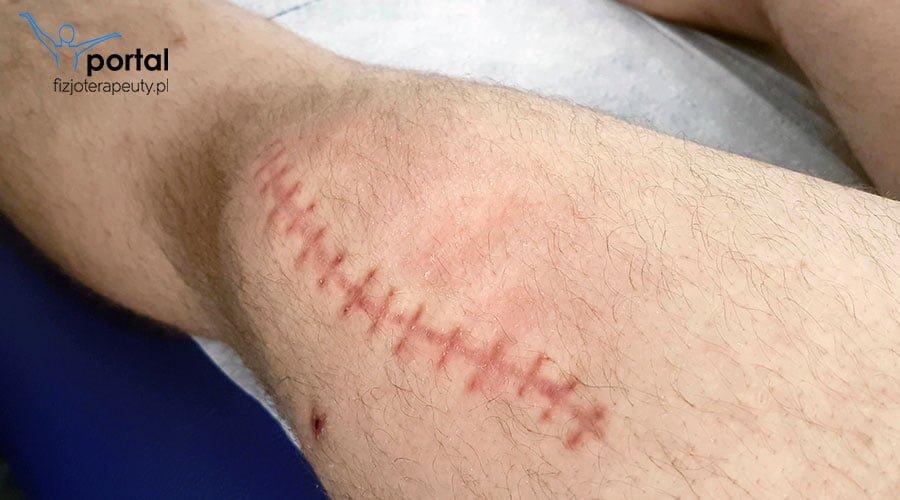 Uszkodzenia skóry - fizjoterapia