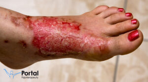 Oparzenia - stopnie, fizjoterapia